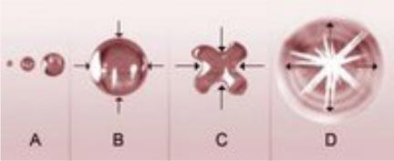 cavitación ultrasonidos